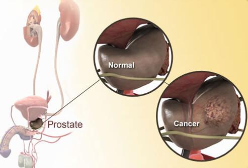 10 Perkara Tentang Kanser Prostat Yang Lelaki Patut Tahu Sebelum Terlambat
