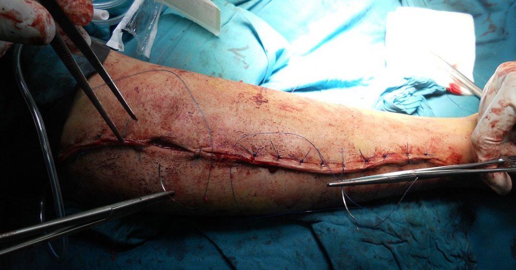 pembedahan orthopedik