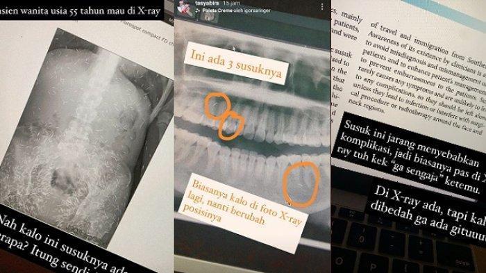 viral-foto-x-ray-ratusan-jarum-diduga-susuk