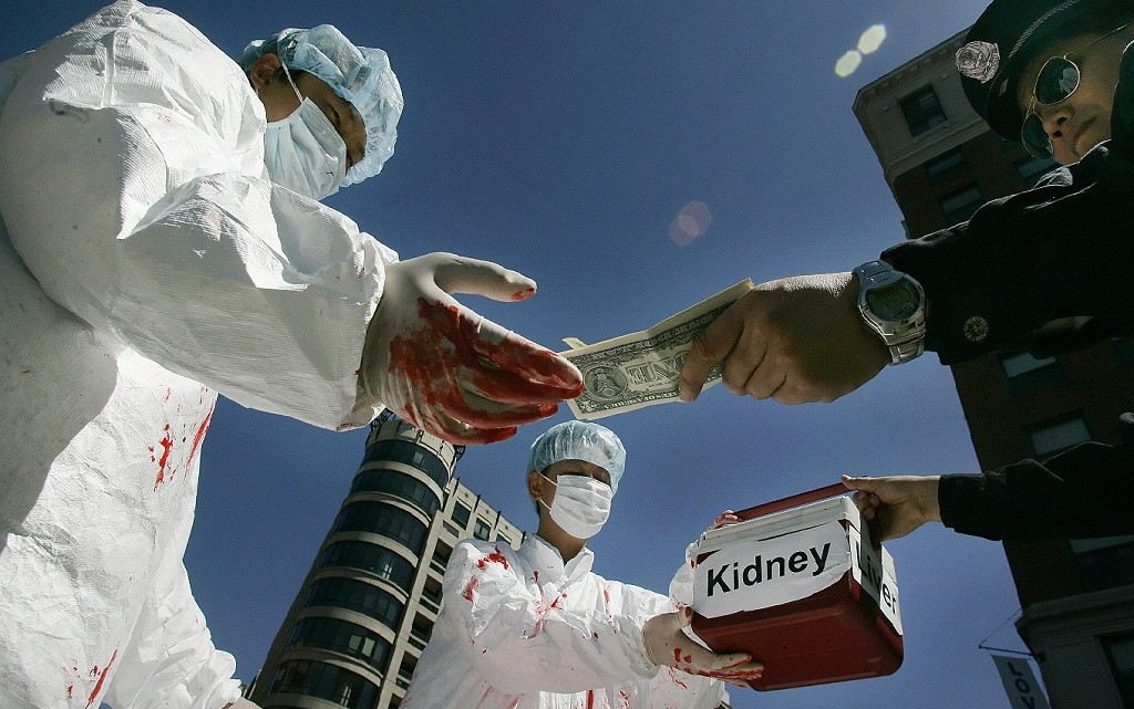 Poverty-in-Pakistan-triggers-boost-in-Illegal-Kidney-Trade